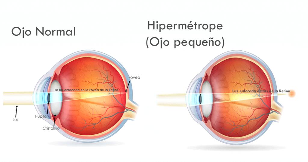 Hipermetropia-1024x546